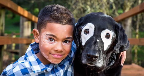 Boy with vitiligo hate himself until he finds a buddy in dog with same condition