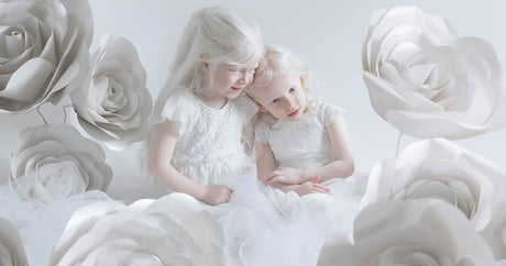 Photographer Captures The Beauty Of Albinism In Captivating Photo Series